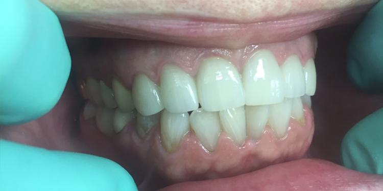 After Dental Treatment at Bessey Creek Dental Care, Dr. Steven Kline, Palm City Dentist serving Palm City, Martin Downs, Stuart, Port St. Lucie, Port Salerno and Martin County.