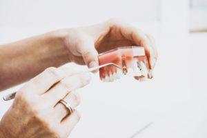 Dental Implants | Bessey Creek Dental Care