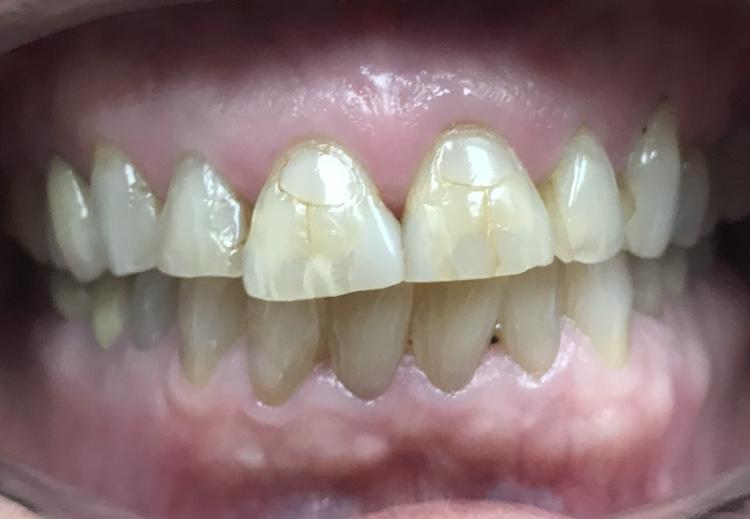 Before Dental Treatment at Bessey Creek Dental Care, Dr. Steven Kline, Palm City Dentist serving Palm City, Martin Downs, Stuart, Port St. Lucie, Port Salerno and Martin County.